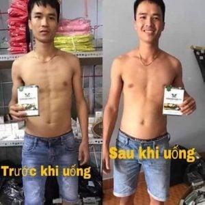 Hình ảnh trước và sau khi sử dụng Sâm bổ kiện tỳ.